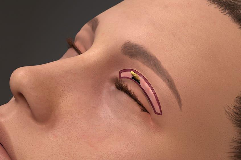 eliminacion-grasa-y-piel-parpado-caido-blefaroplastia-cirugia-de-párapados-operación-de-párpados-en-asturias-oviedo-gijon