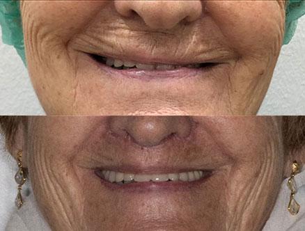 queiloplastia-adultos-cirugía-labios