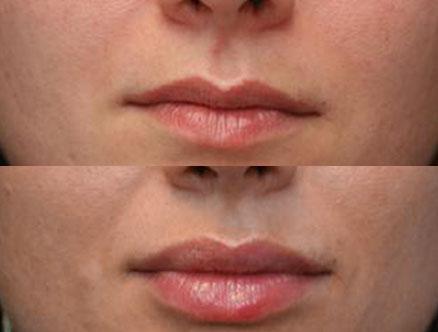 queiloplastia-volumen labios